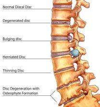 Disc-injury-sciatica