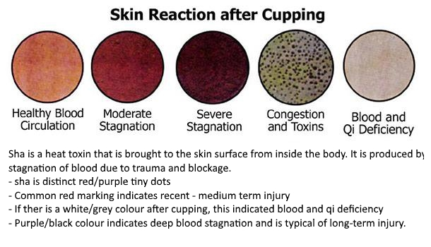 skin reactions after cupping.jpg